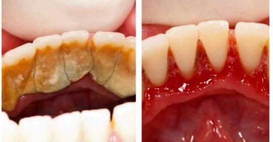 Дантисти вам цього не скажуть: Є один спосіб щоб позбутися від зубного каменю самому і вдома!