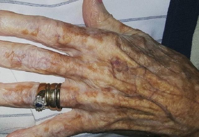 Літня жінка попросила медсестру обрізати нігті на руках, і ось що почула у відповідь