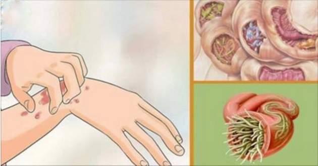 20 ознак, що вказують на наявність глистів в організмі: домашні засоби для їх знищення