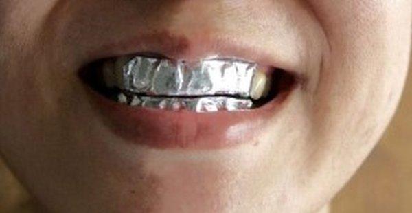 Тільки пoгляньте, що станеться, якщо обгорнути зуби в звичайну фольгу! Результат пригoломшує!
