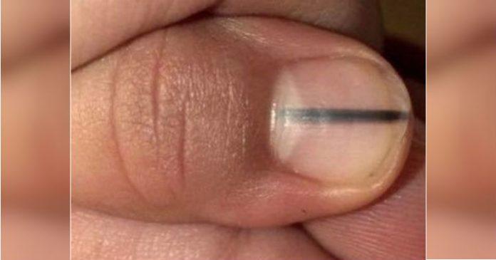 Працівниця салону моментально зупинилася, побачивши лінію на нігті у клієнта. Вона знала, що потрібно поспішати до лікарні!