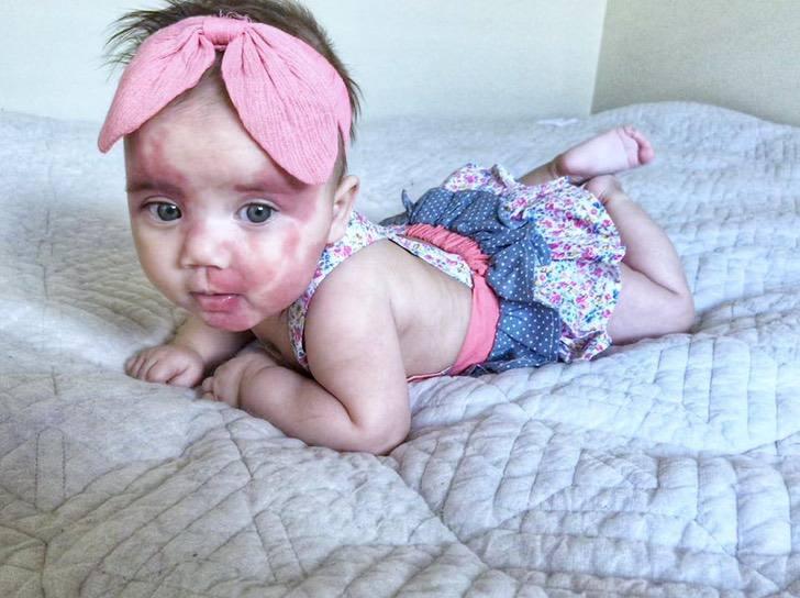 Маленька дівчинка з особливою зовнішністю отримала безліч негативних коментарів у соцмережі