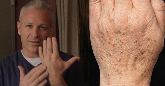 Американський лікар рекомендує: простий спосіб швидко усунути пігментні плями на шкірі. Всього 2 інгредієнти!
