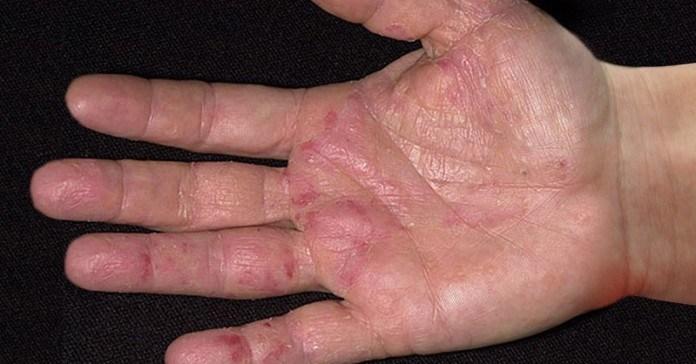 Першuмu про наявність раку сurналізують рукu! І ось як це можна помітuтu…
