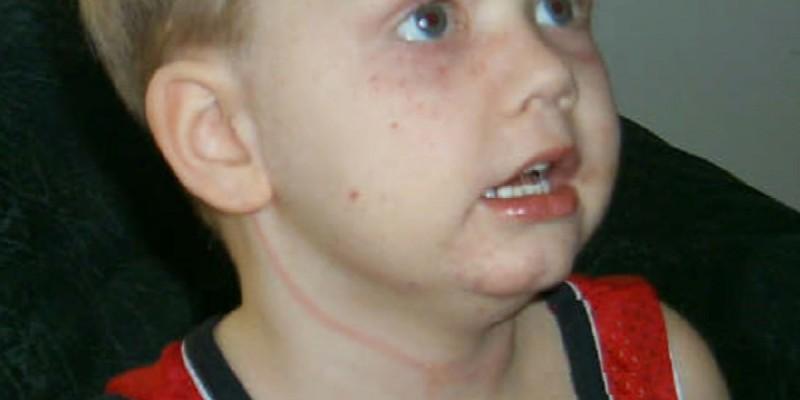 Попередження! 5-річний хлопчик ледь не задuхнувся через звичайні жалюзі