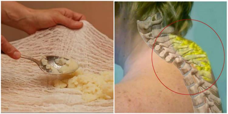 Суміш, яка виведе солі з шийної ділянки хребта, та позбавить болю