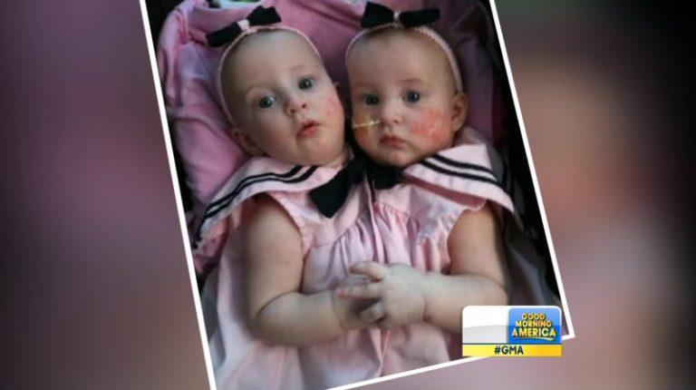 Лікарі не давали шансів цим малятам, але материнське серце не погоджувалося з ними!