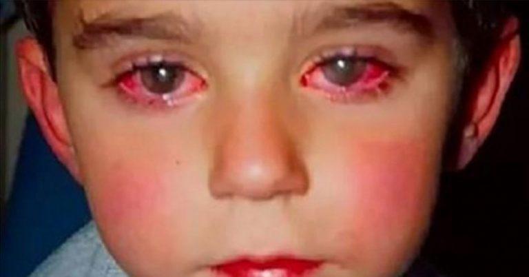 Невинна іграшка позбавила дитину найважливішого: Маленький хлопчик втратив 75% зору через популярну покупку батьків
