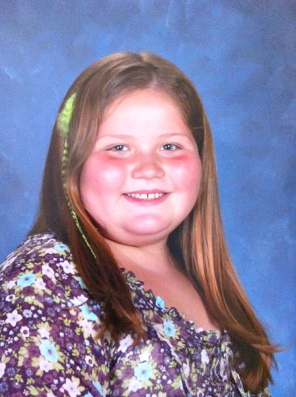 Всі діти в класі труїли цю 9-річну дівчинку через її величезну вагу. Але погляньте на неї тепер!