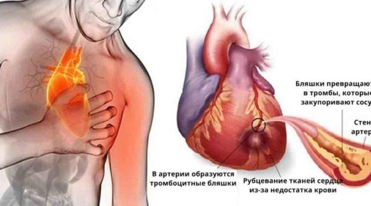 ВАЖЛИВО!! Якщо ви боїтеся серцевого нападу та інсульту, не пийте цей напій ніколи!