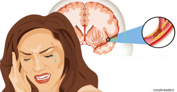 10 ознак, того що ви пережили тихий інсульт – і найгірше ще попереду …