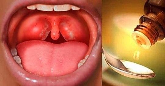 У вас часто болить горло, пропадає голос і мучить кашель? Ось як позбутися від цих проблем за ніч, просто і легко!