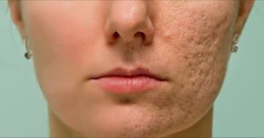 Нанесіть це на шрами, зморшки або плями на шкірі і насолоджуйтеся тим, як швидко все буде зникати!