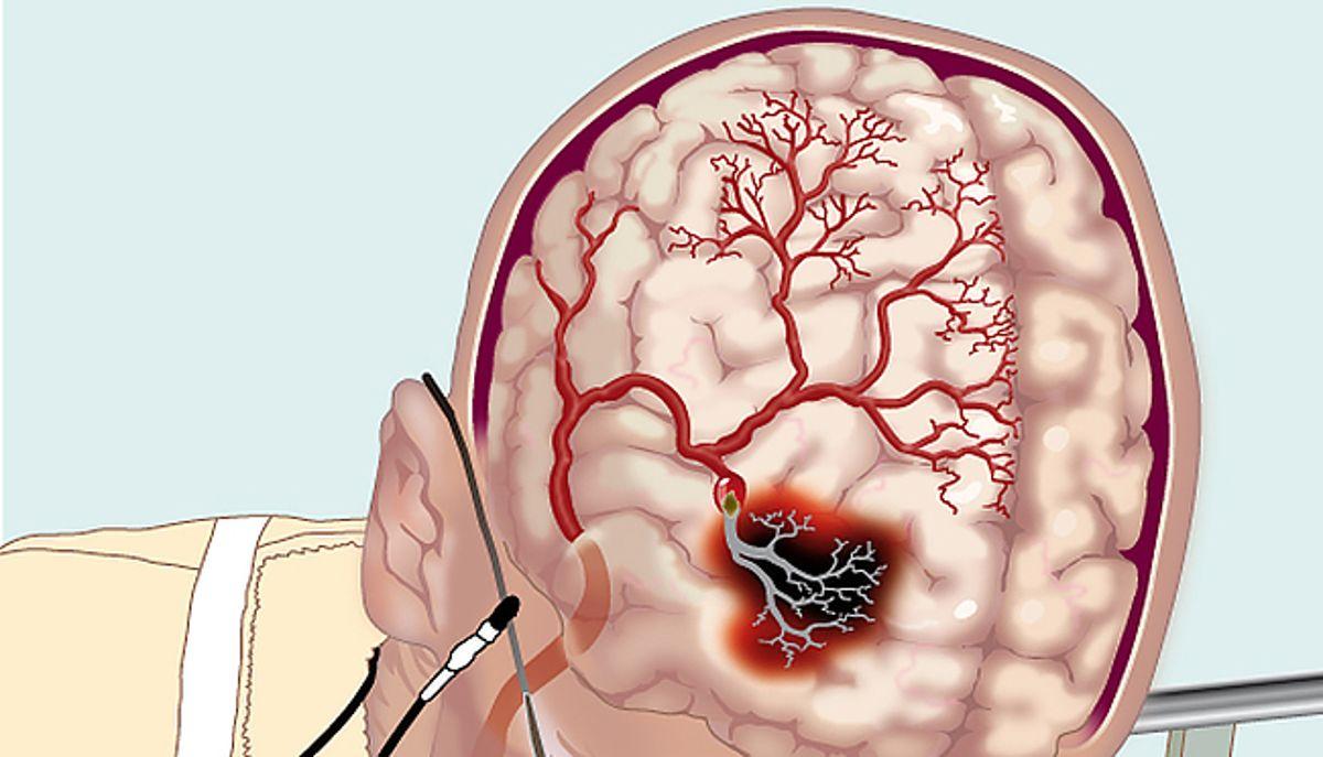 Три найбільш дієві способи для покращення кровообігу у головному мозку!