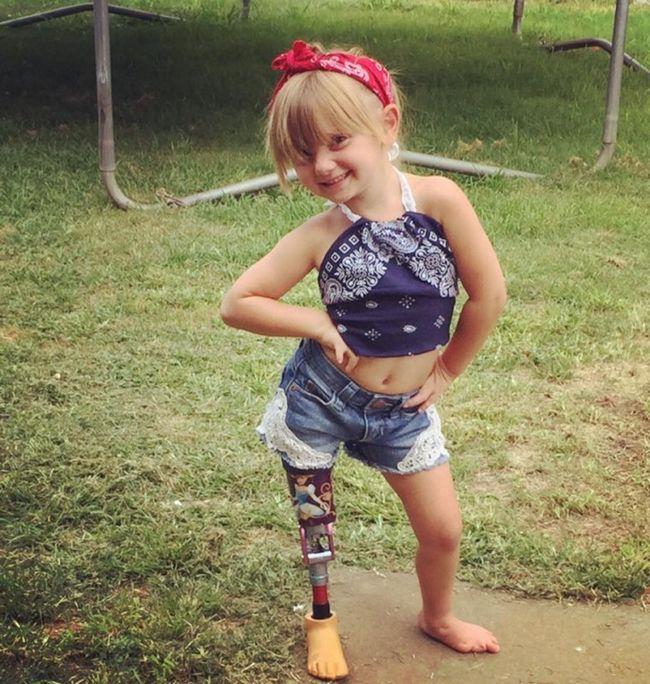 Батьки ампутували ногу своїй рідній дочці. Причина такого рішення стала шоком для всіх.