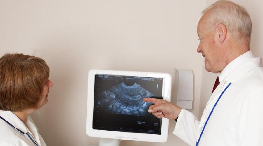 На 9 місяці вагітності їй сказали, що у малюка немає серцебиття …. Але коли лікарі взяли mертву дитину, сталося диво!