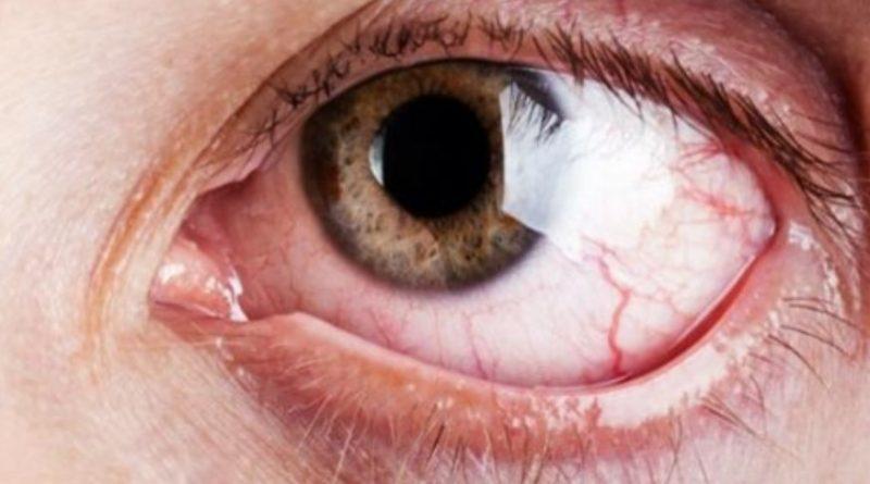 Домашній рецепт, який покращить ваш зір та позбавить печіння очей