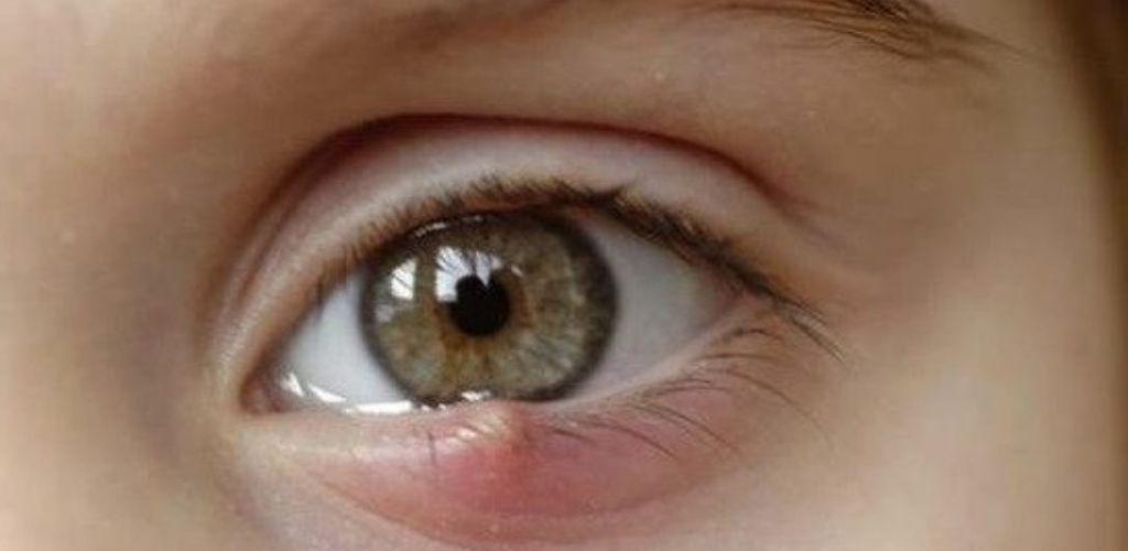 8 безпечних і ефективних способів позбутися від ячменю на оці