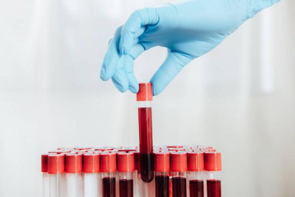 Фахівці назвали групи крові, чиї власники відрізняються особливо сильним імунітетом