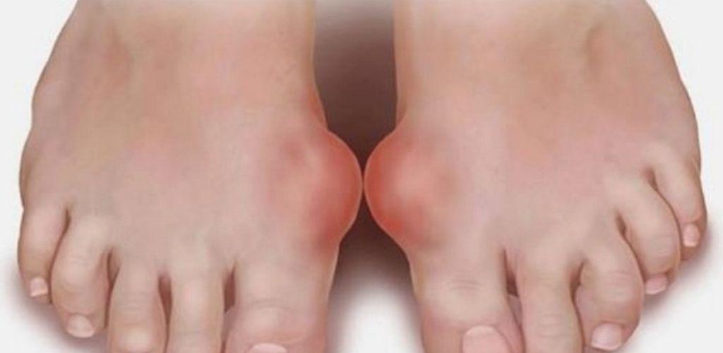 3найома Медсестра відкрила таємницю, як позбутися кісточки на нозі..Це працює