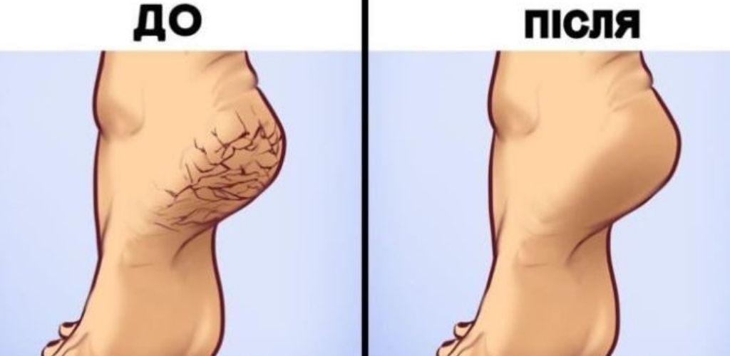 Ось 5 домашніх способів, щоб усунути тріщини на п'ятах і зробити свої ніжки ще гарнішими!