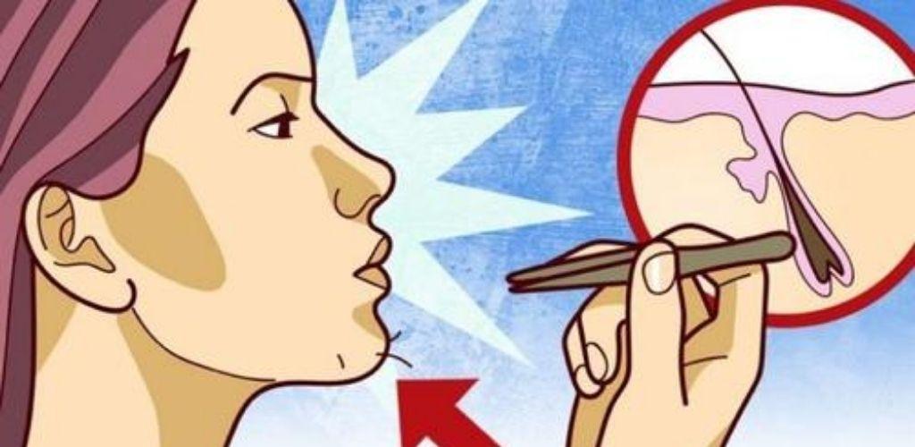 Чому у жінок ростуть вуса і борода — іноді це симптоми деяких хвороб